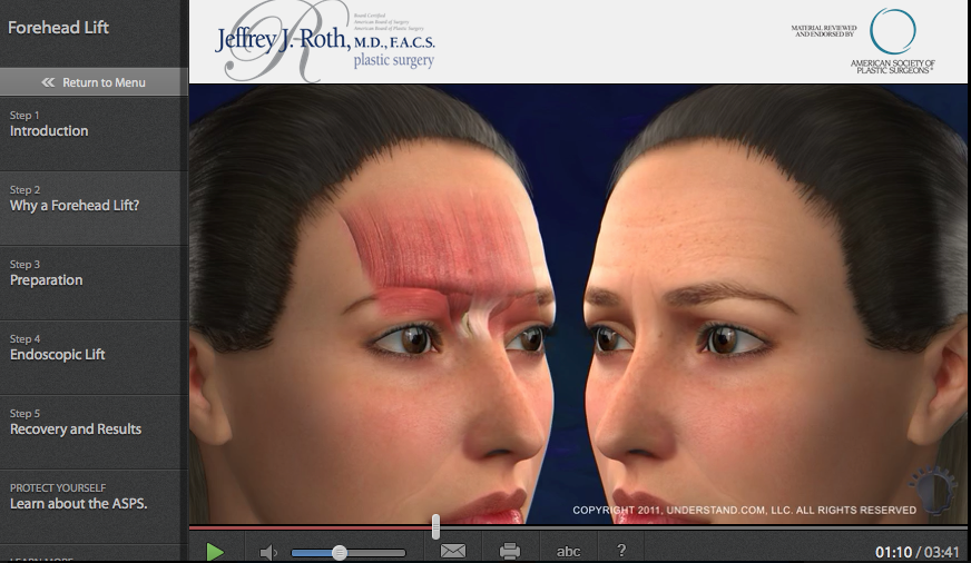 Browlift (Forehead Lift)