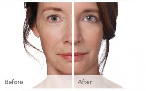 Radiesse Facial Filler In Las Vegas, NV - Dr Jeffrey J Roth, M D