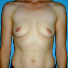 breast implant