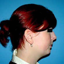 rhinioplasty procedure