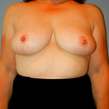 breast lift images