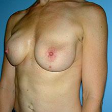 breast correction procedure