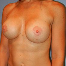 breast revision las vegas