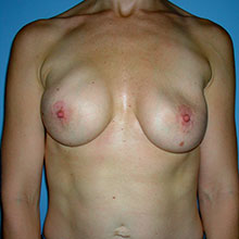 breast augmentation revisions