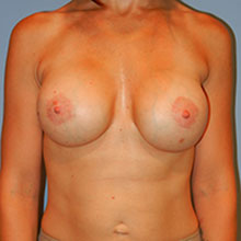 breast corrections