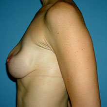 breast revision pictures