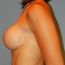breast correction images
