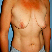 breast before image