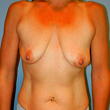 breast before picture