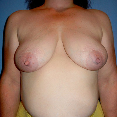 Before and After Mastopexy Front Before