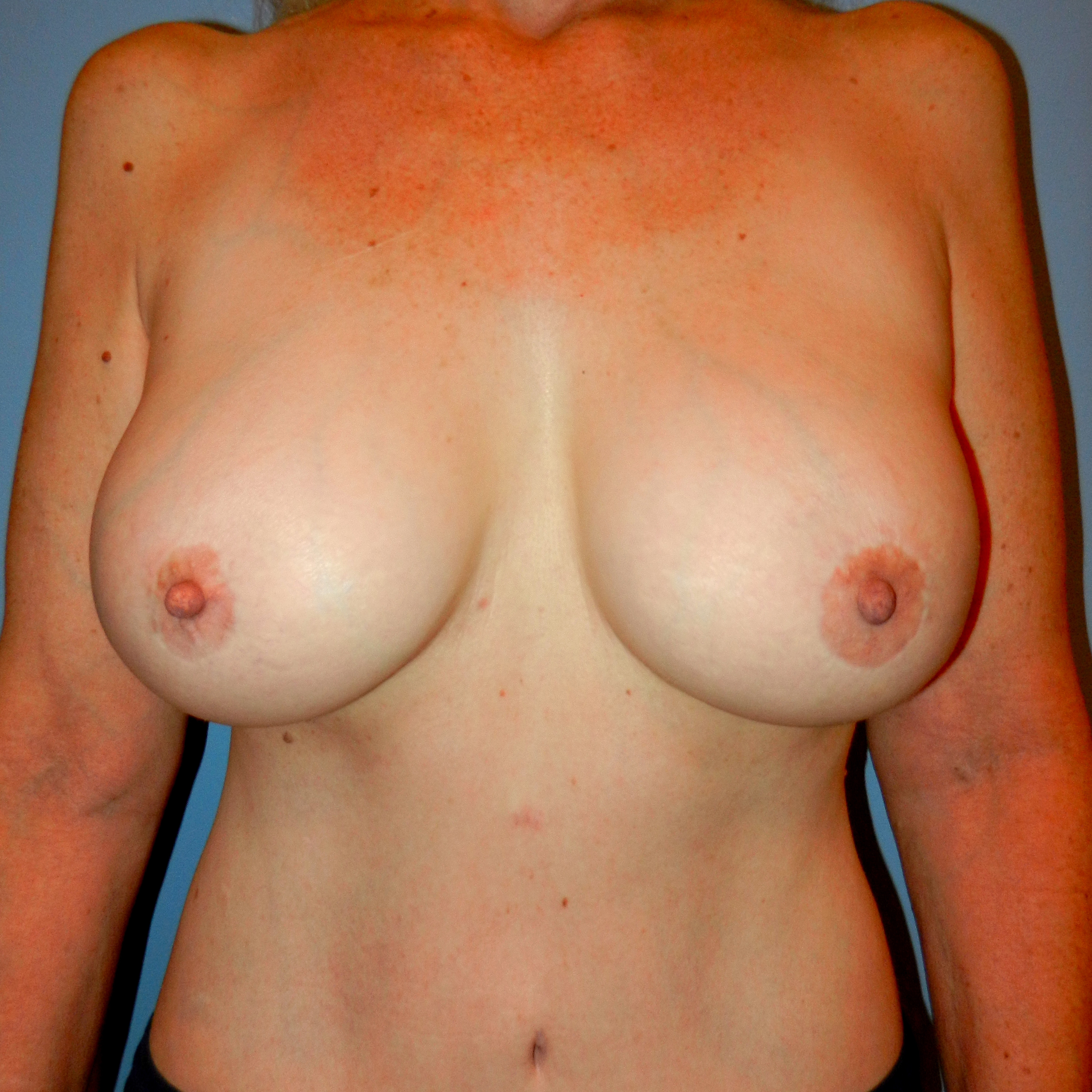 Lift and Augmentation After Front
