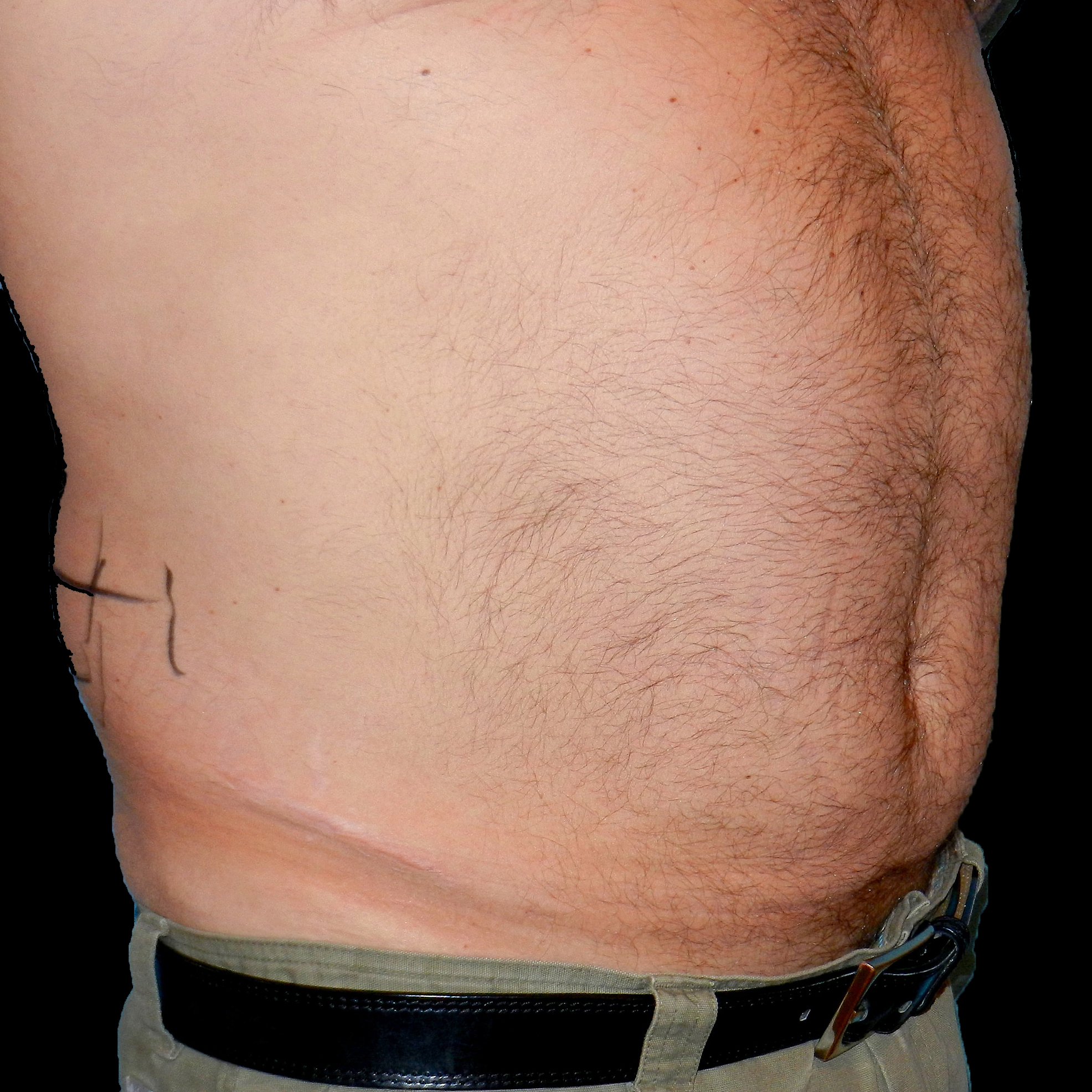 CoolSculpting Male Stomach Before