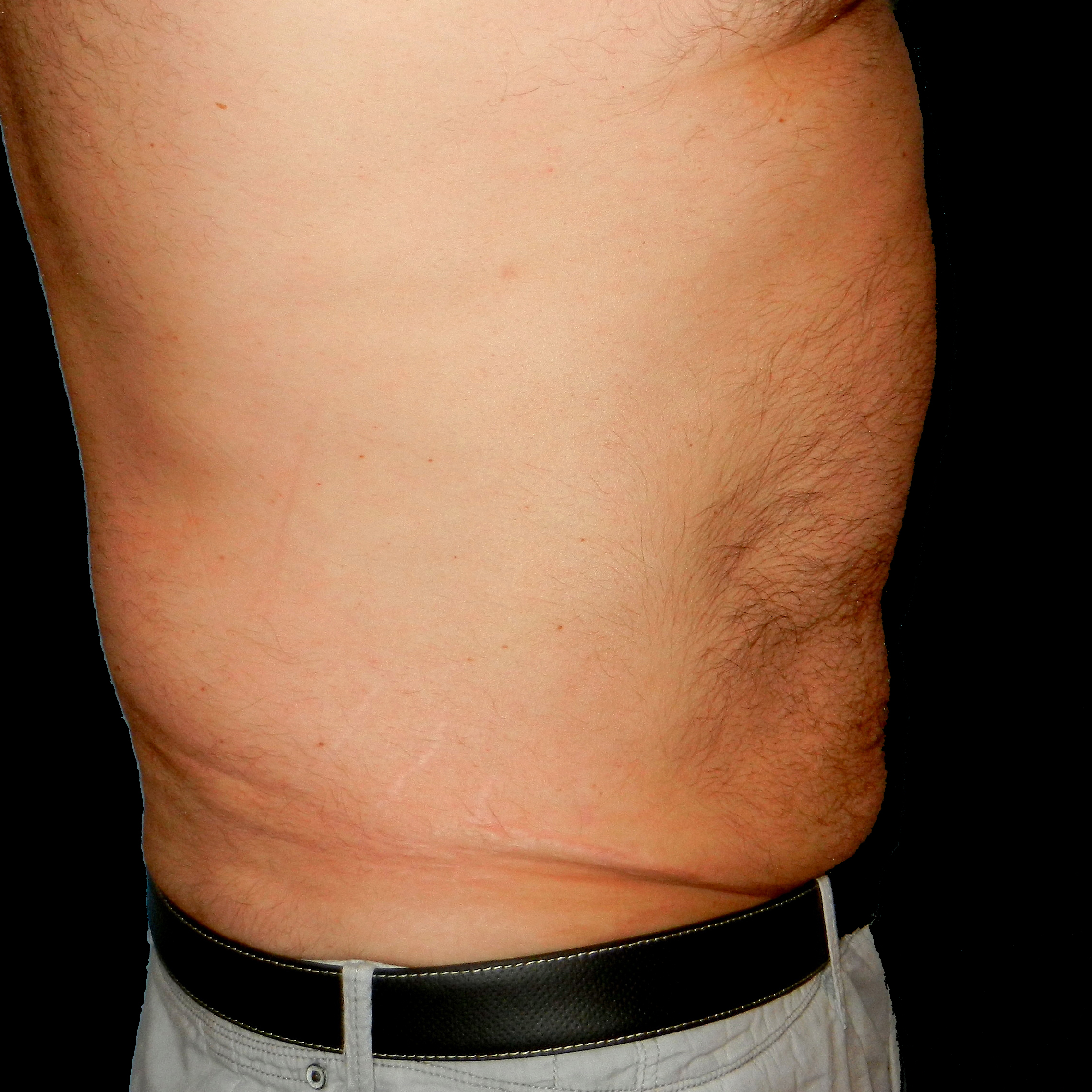 CoolSculpting Male Flanks After