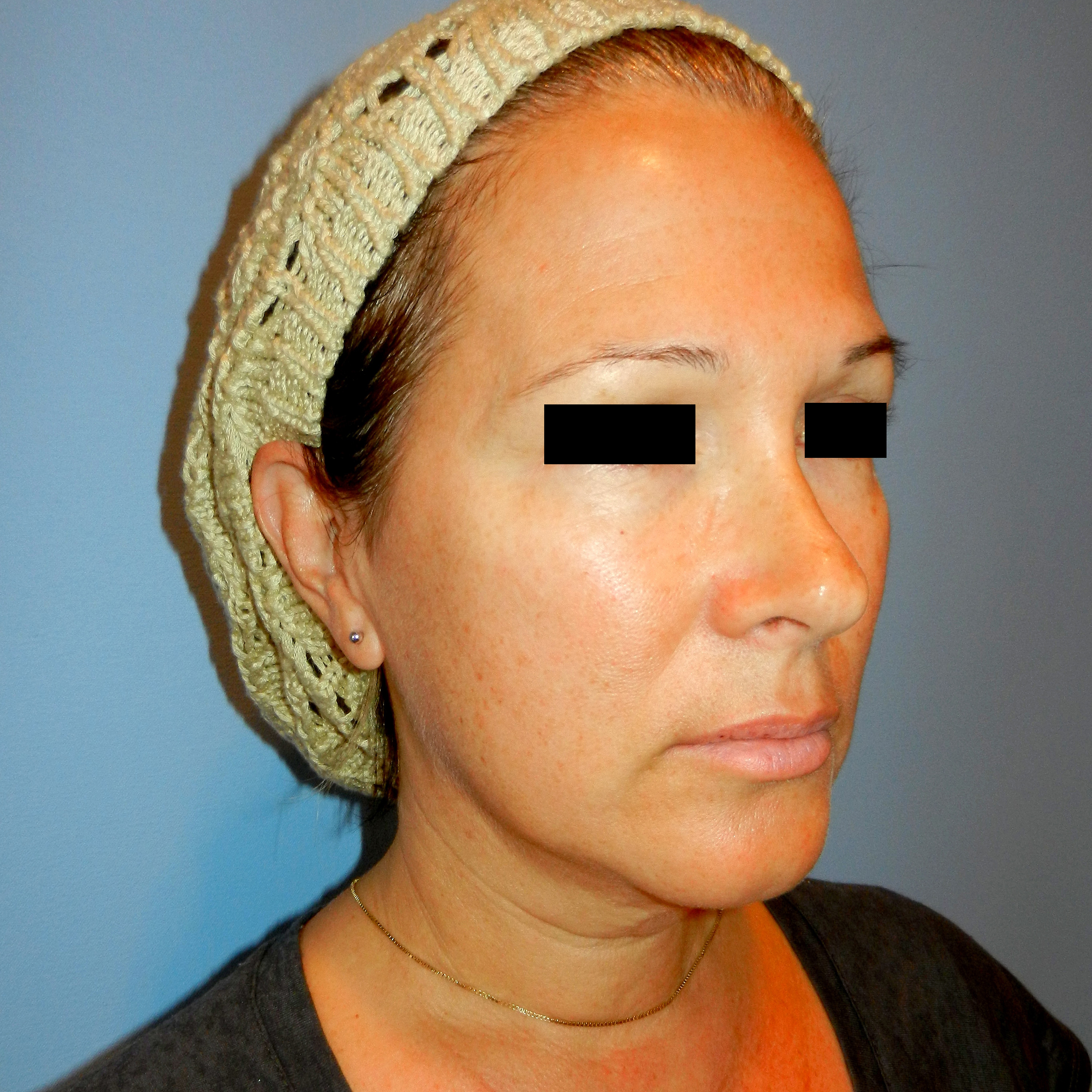 Facelift Age 51 Before Side