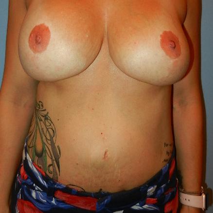 Las Vegas Plastic Surgery